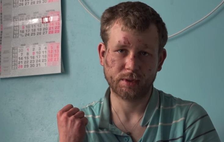 Депутат завел раба: под Мариуполем чиновник избил исвязал цепью рабочего