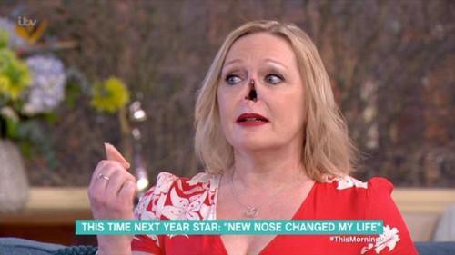 """Женщина """"отстегнула"""" нос в прямом эфире / фото ITV"""