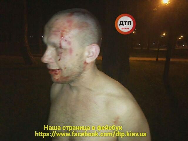 Атошник в ходе задержания упал лицом в асфальт / фото dtp.kiev.ua