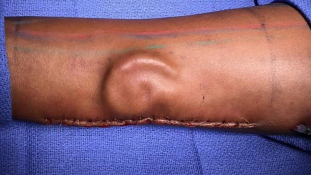 Американскому солдату вырастили ухо изсобственного грудного хряща
