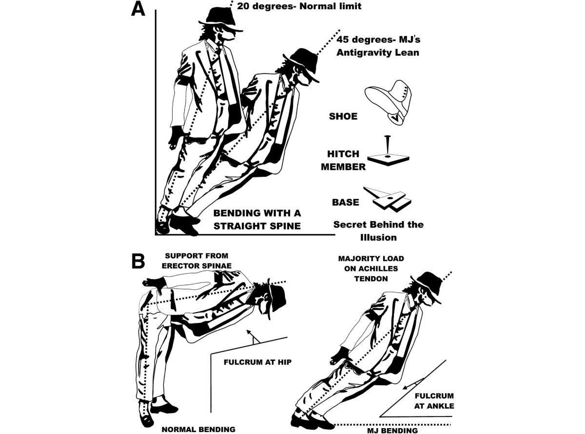Нейрохирурги объяснили невероятный танец Майкла Джексона