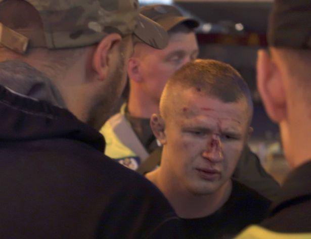 В результате инцидента несколько фанатов получили порезы головы и шеи / Mirror