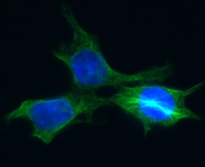 Зображення клітин раку молочної залози у миші / фото eurekalert.org