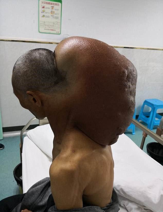 Китаец прожил с опухолью почти 50 лет / фото Asia Wire