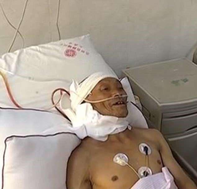 После операции муж шутит, что почуваеться непривычно без 15-килограммовой опухоли / фото Asia Wire