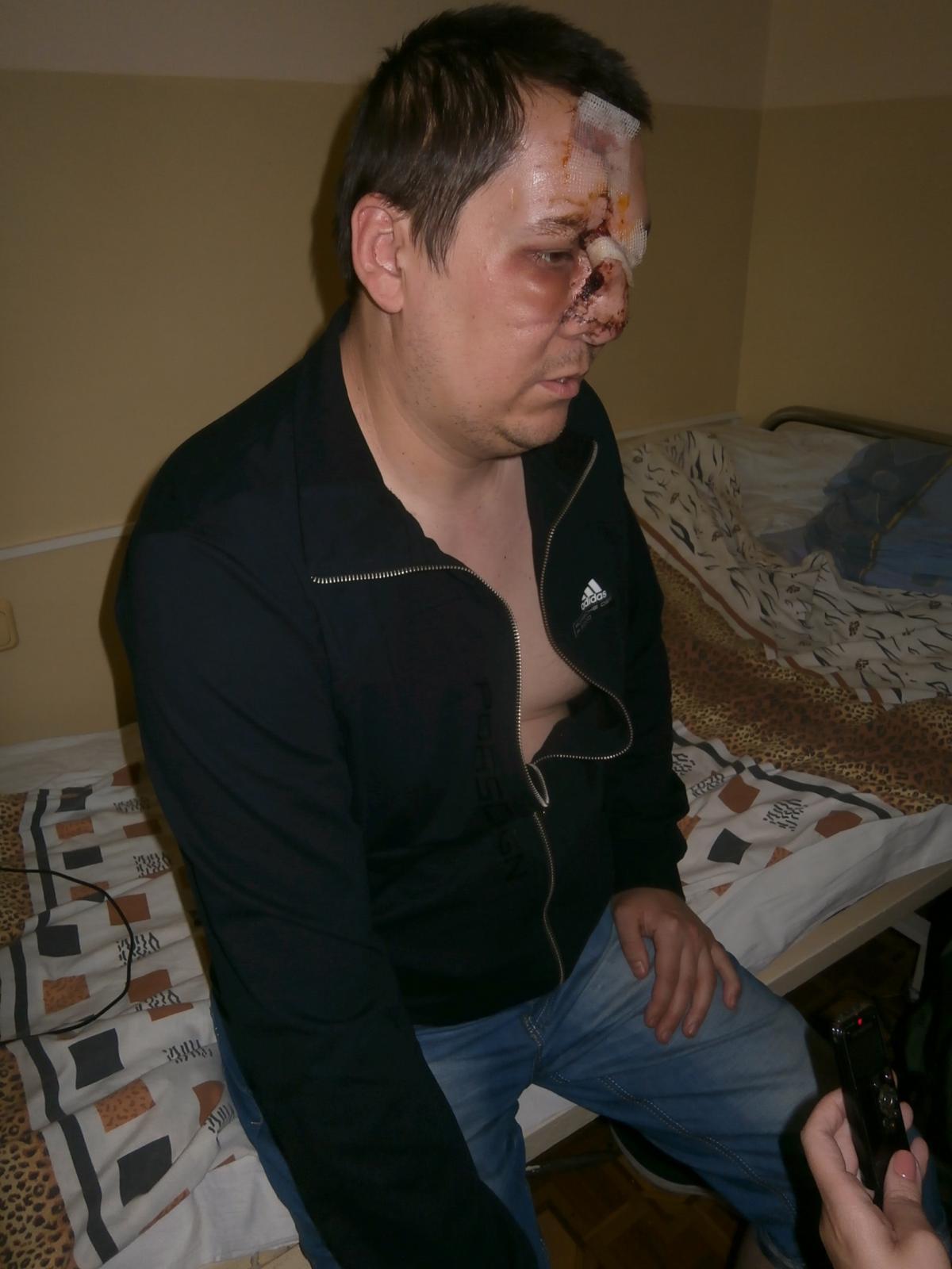 Полянский: Повезло, что снаряд попал не в моторный отсек, а в башню / Фото УНИАН