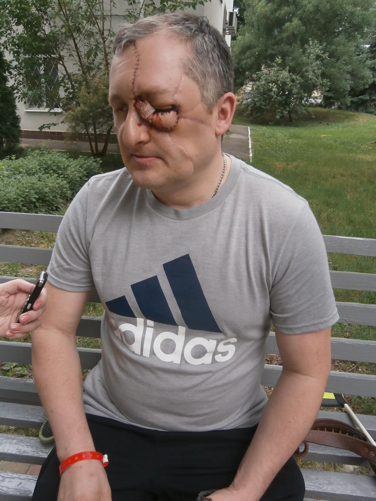 Александр Дарморос в результате подрыва на противопехотной мине потерял ногу, глаза, лицо / Фото УНИАН