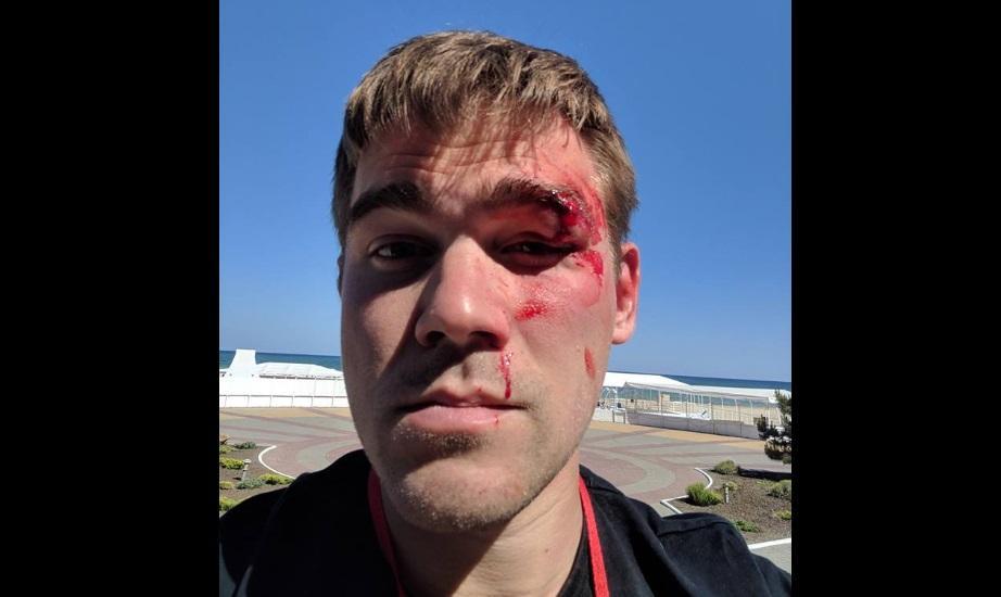 Владелец магазина избил Рыбальченко, а потом обвинил в желании заработать и попиариться / Фото facebook.com/Cooluck