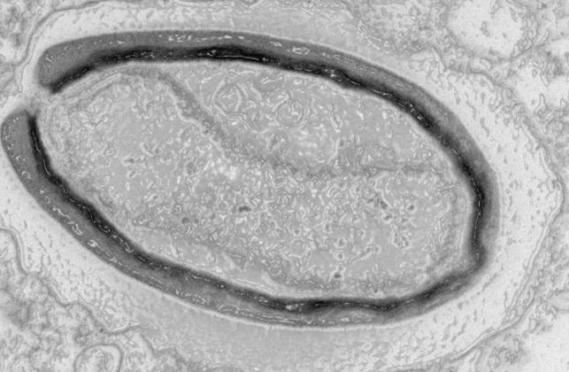Изображение Pandoravirus quercus, полученное с помощью электронного микроскопа / фото Matthieu Legendre/Nature Communications