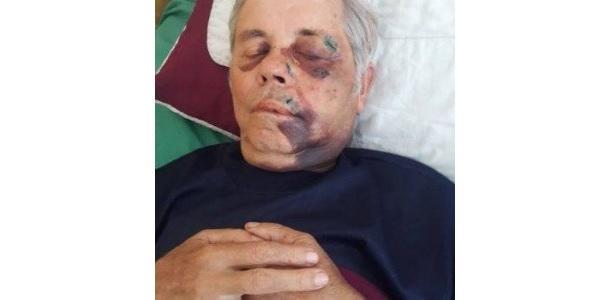 На Закарпатті невідомі жорстоко побили і пограбували священика / transkarpatia.net
