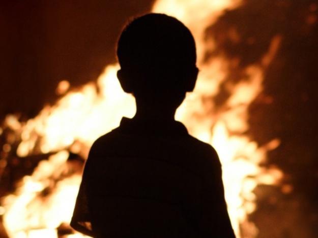Мальчик получилобширные ожоги / kh.vgorode.ua