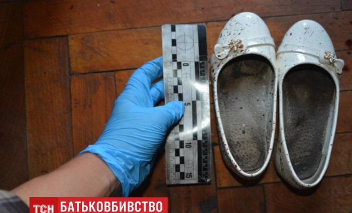 Дитина вдарила батька ножем у шию / Скріншот