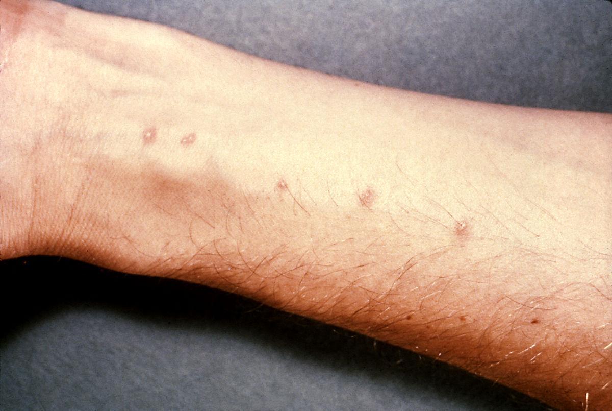 Ежегодно из-за шистосомоза умирает до 200 тысяч человек / фото wikipedia.org