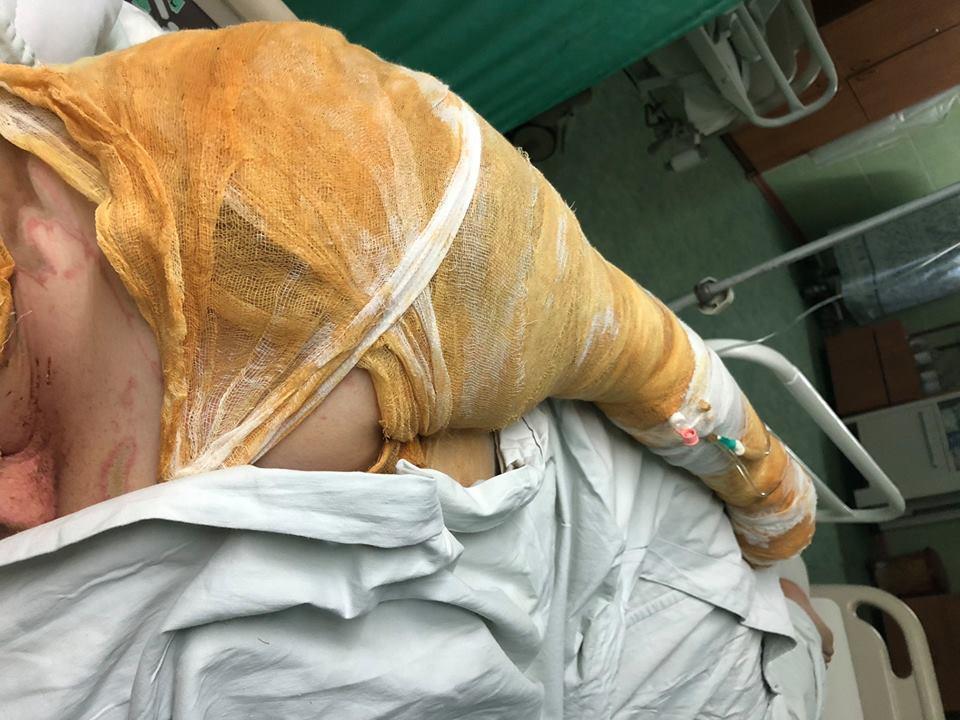 Полиция рассматривает нападение на активистку в Харькове как покушение на убийство / фото facebook.com/MasiNayyem