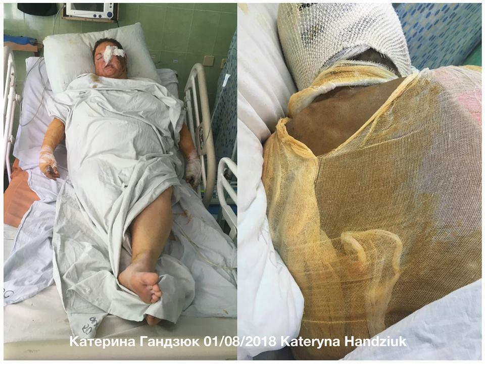Активистка Екатерина Гандзюк, которую облили кислотой, перенесла уже 11 операций / фото Masi Nayyem, Facebook