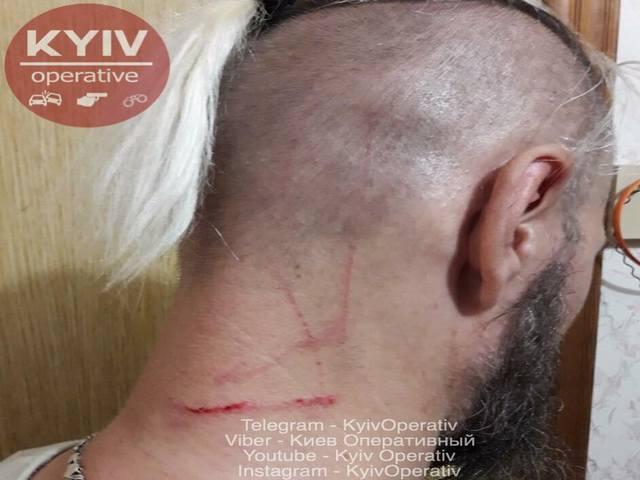 Потом пожилая женщина бросилась с кулаками и на защитника-мужчину / фото КиевОперативный