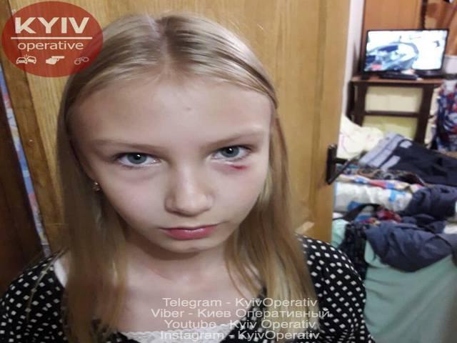 В Киеве бабуля избила школьницу / фото КиевОперативный