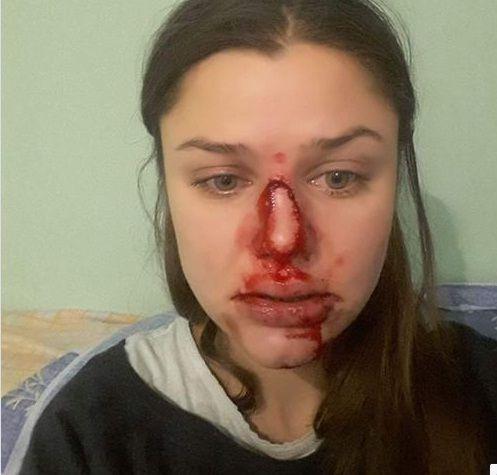 Шевцова написала про насильство у родині / Скріншот
