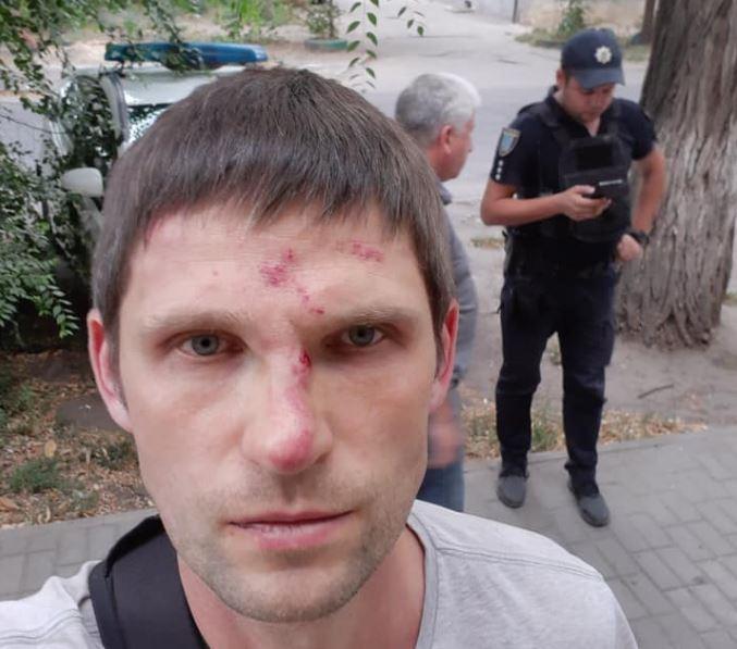 Жителя Днепра Олега Чистопольцеваизбили за улыбку / Facebook - Олег Чистопольцев