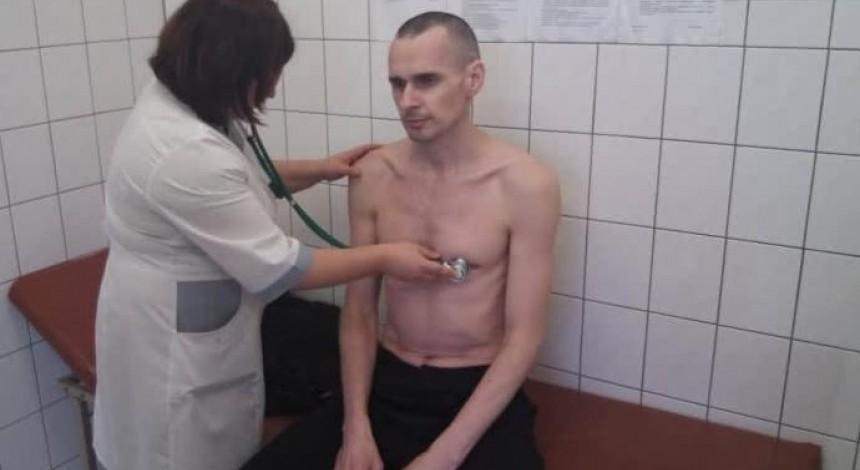 У Сенцова виявлено ураження серця, печінки і нирок - адвокат