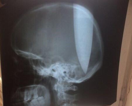 Росіянин встромив собі в голову ножа і залишився усвідомості / фото Mash