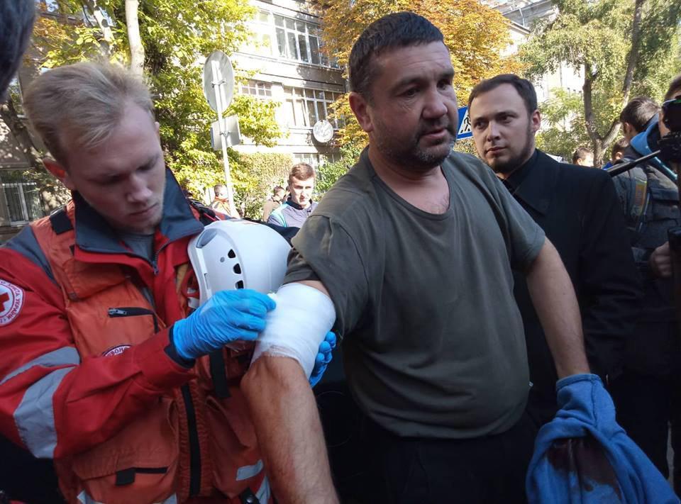 Пострадавшему перевязали рану \ фото УНИАН
