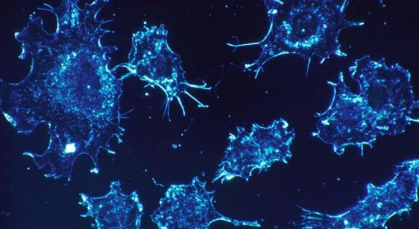 Ученые нашли способ предотвратить рак