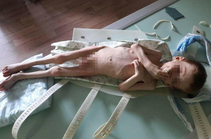 Ребенок весил всего 8 кг/ фото pravda-kr.com.ua