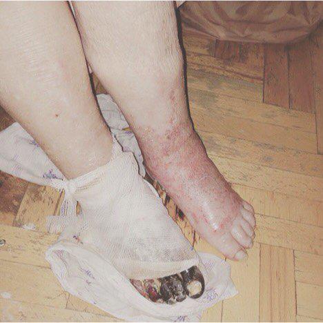 Жінка втратила здоровуногу/ фото riavrn.ru