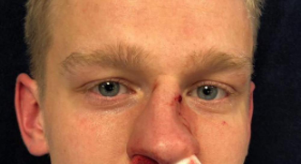 что будет за сломанный нос