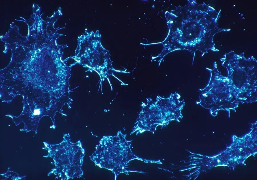Израильские фармацевты заявили, что в течение года у них будет полноценное лекарство от рака / фото naked-science.ru