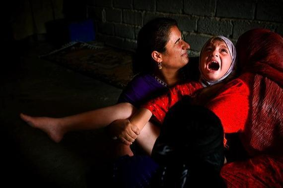 Женщинам часто проводят эту операцию против их воли/ фото pikabu.ru