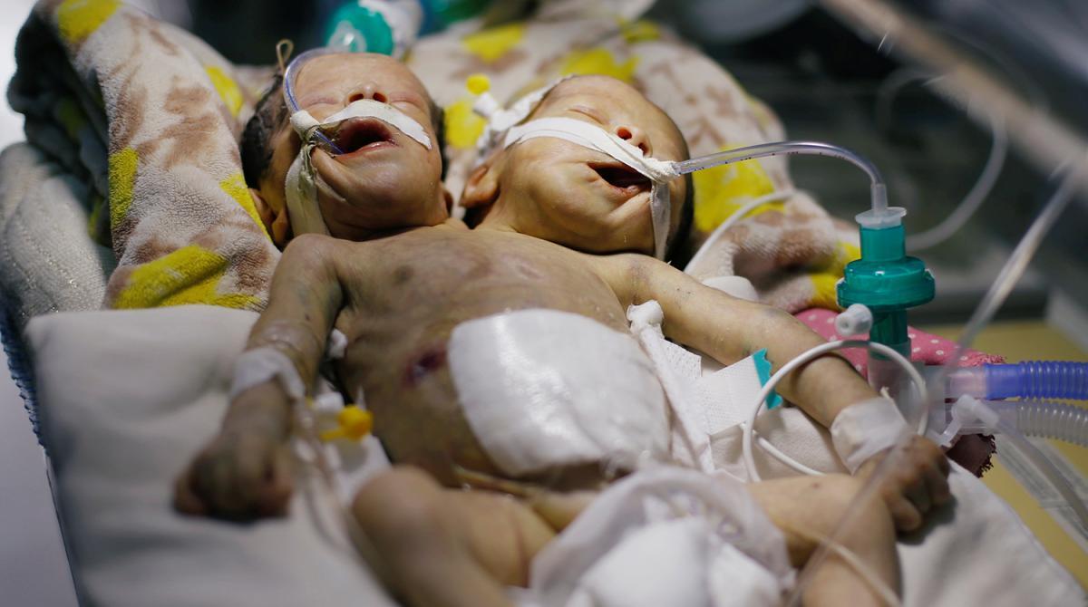 Сиамские близнецы Абдул-Халид и Абдул-Рахим в больнице йеменской Саны / REUTERS