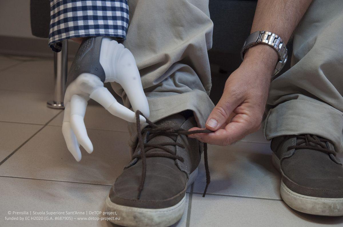 16 електродів протеза підключені безпосередньо до нервів і м'язів людини / фото naked-science.ru
