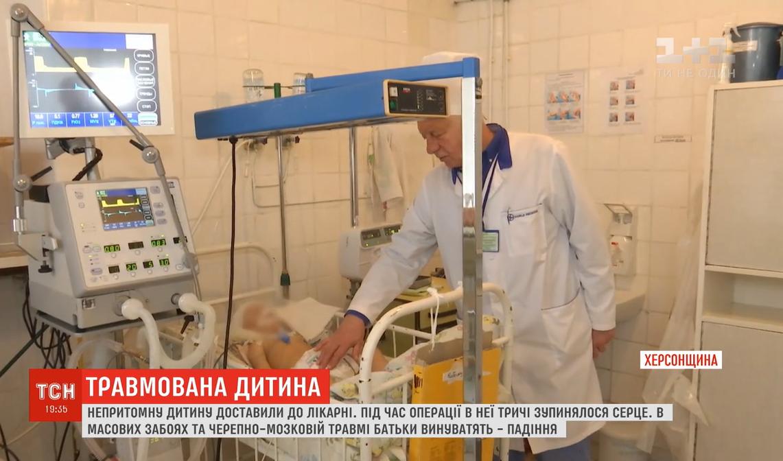 На Херсонщине врачи спасают жизнь годовалой девочки с тяжелыми ушибами / скриншот видео ТСН