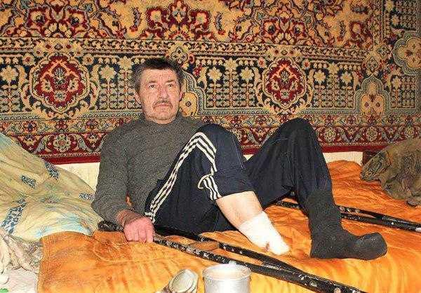 У мужчины не было денег на операцию / фото roxolana.com.ua