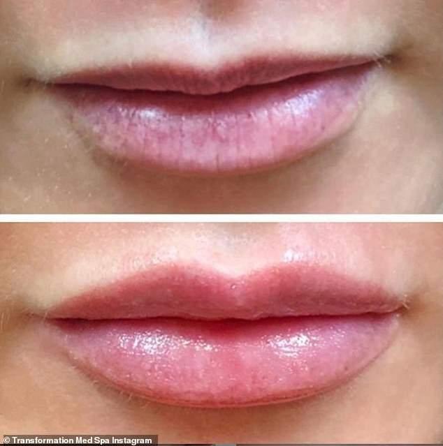 Появился новый бьюти-тренд / фото transformation med spa instagram