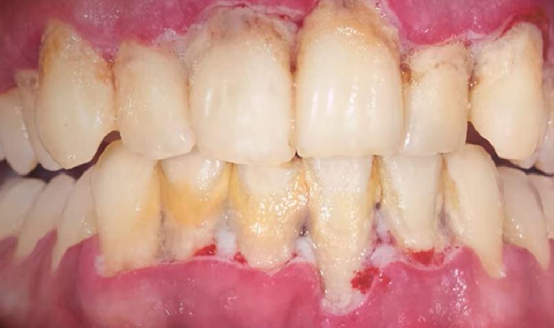 Названы последствия от отказа чистки зубов / Скриншот