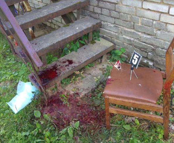 Нападающийзадержан,проводятся следственные действия / фото facebook.com/igor.zinkevych