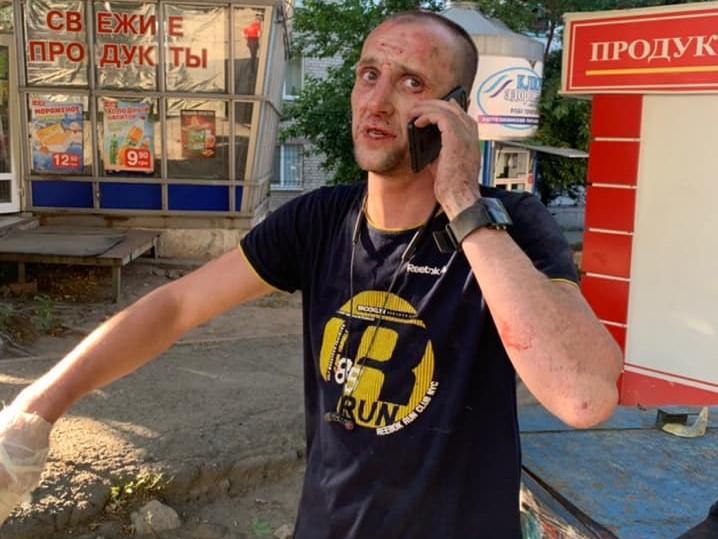 Хуліганом виявився 37-річний чоловік / Михайло Лисенко/Facebook