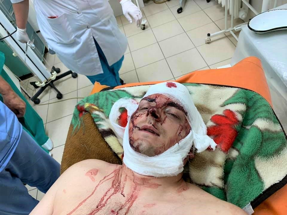 Сейчас пострадавший находится в реанимации / Фото Елена Сердюк/Facebook