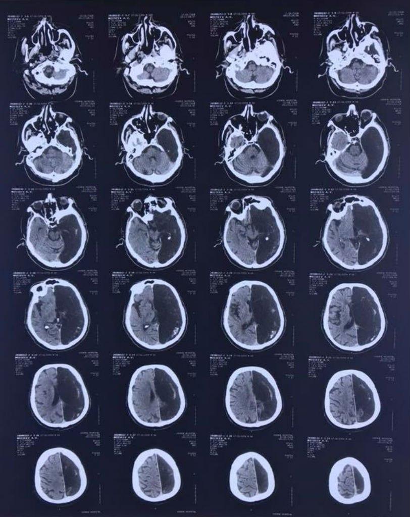 В Подмосковье обнаружили уникального пациента с половиной мозга