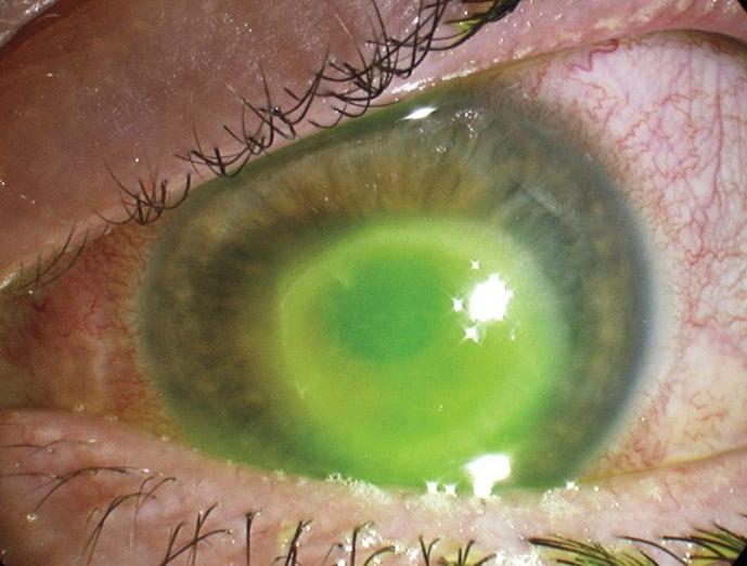 После операции зрение женщины немного улучшилось / фото naked-science.ru
