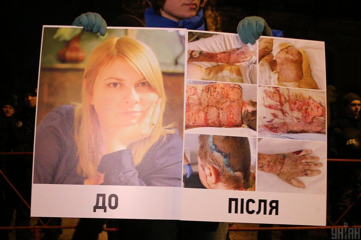 Екатерина Гандзюк с ожогами 40% тела была доставлена в реанимацию / фото УНИАН