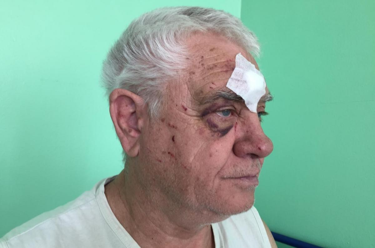 68-year-old  Serhiy Slynko was attacked by a police officer wearing civilian clothes / Photo from kharkov.comments.ua
