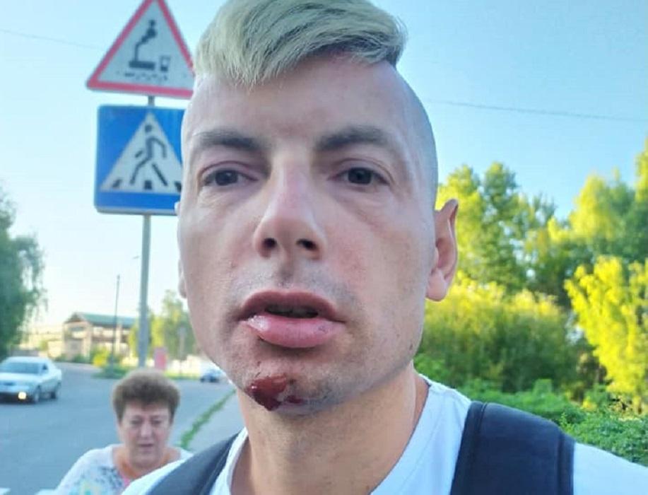 Журналист утверждает, что его избили за профессиональную деятельность / фото со страницы Игоря Стаха