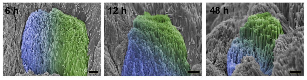 Эмаль «схватывается» на залеченном зубе добровольца: синим окрашены области с естественной эмалью, зеленым — с искусственной / Zhejiang University, Science Advances