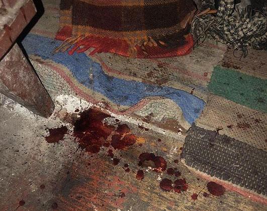 В результате полученных травм скончалась женщина / фото ГУНП в Черниговской области