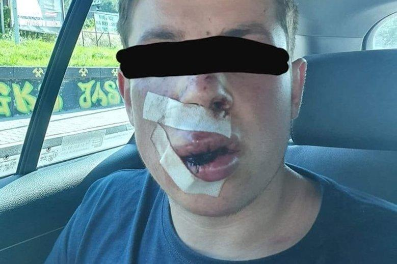 У пострадавшего многочисленные гематомы на лице и на теле / eurointegration.com.ua