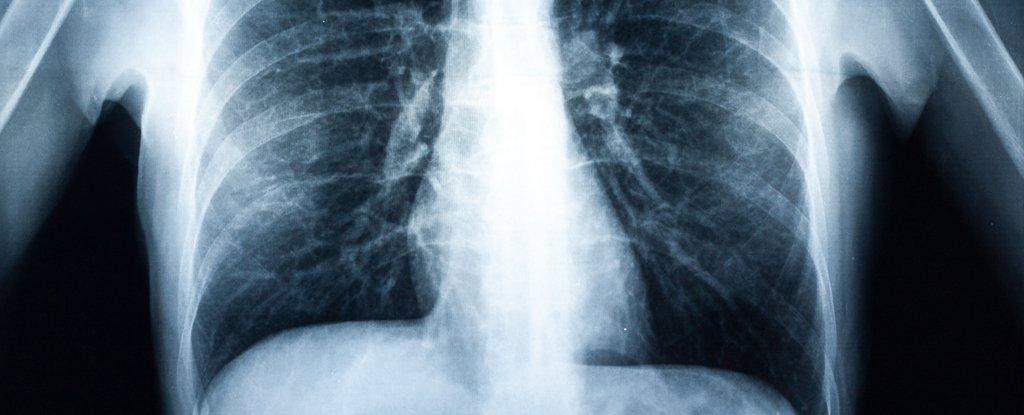 По словам врача, в легких подростка было множество рубцов и воспалений / algarabi/iStock